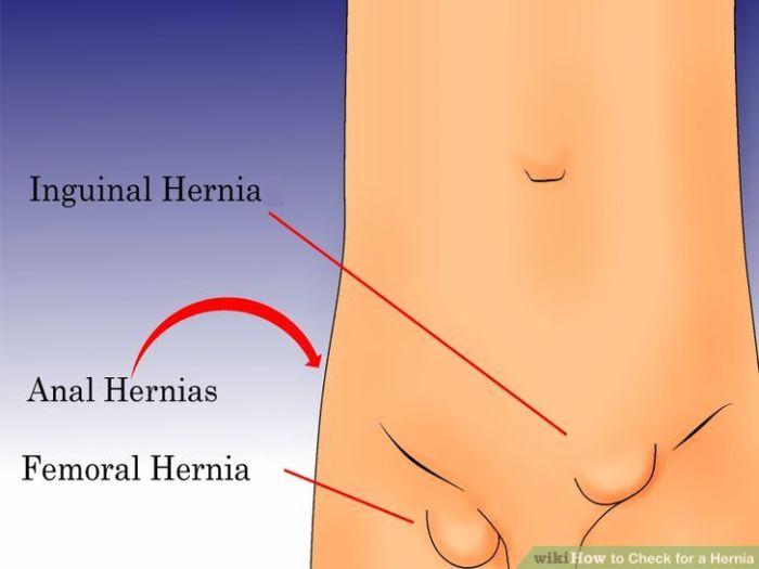 Pengobatan Hernia Tanpa Operasi Yang Paling Ampuh